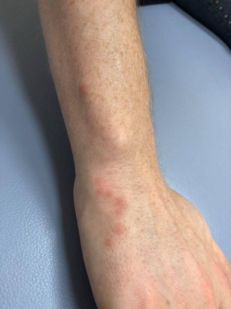 刺され よう な かゆみ 虫 の 発疹