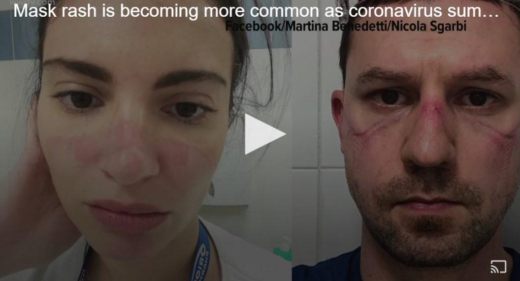 発疹 コロナ