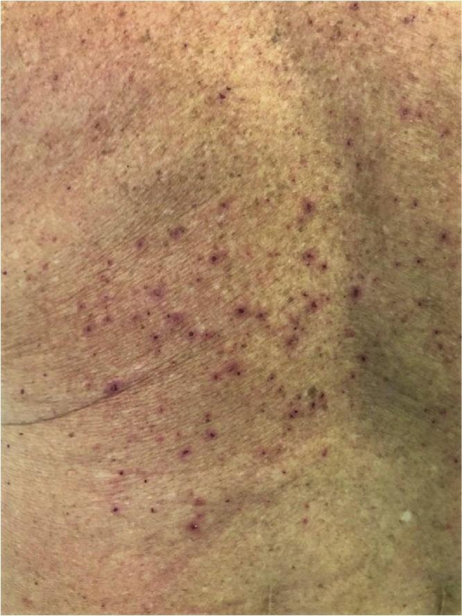 症状 蕁 麻疹 コロナ