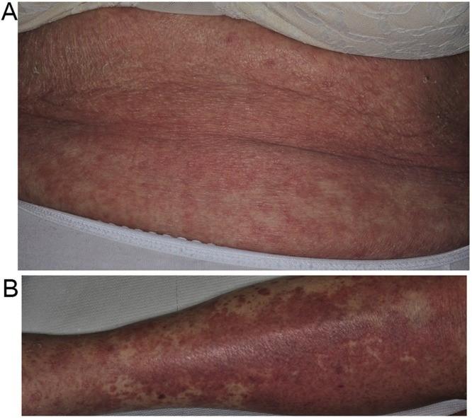 ウイルス 蕁 麻疹 コロナ